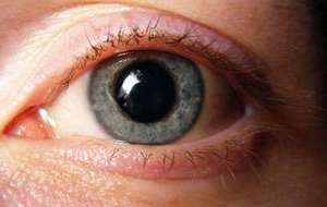 Erkrankungen der Pupille | Gesundheit-Aktuell.de