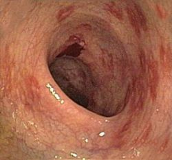 Morbus Crohn (Ileitis terminalis, Enteritis regionalis)