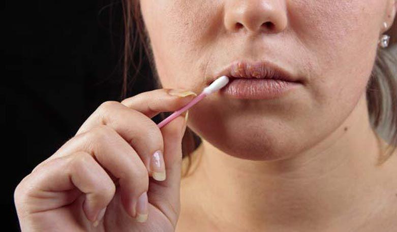 Was tun bei Lippenherpes